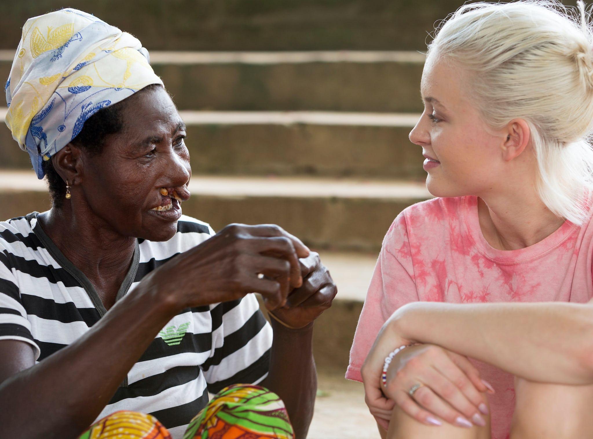 artist zara larsson i ghana med operation smile