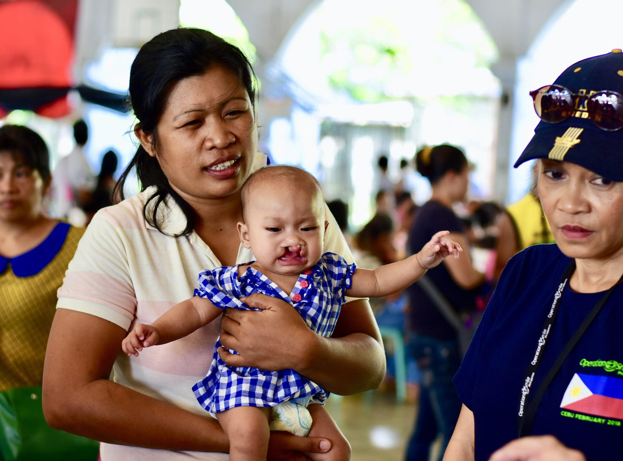 gråtande bebis med läppspalt