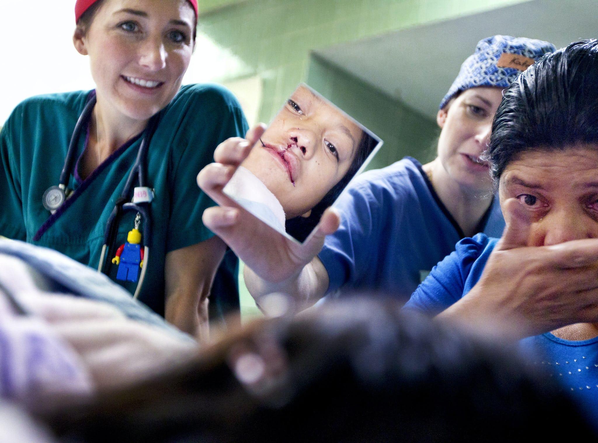 första mötet efter dotterns operation för läppspalt
