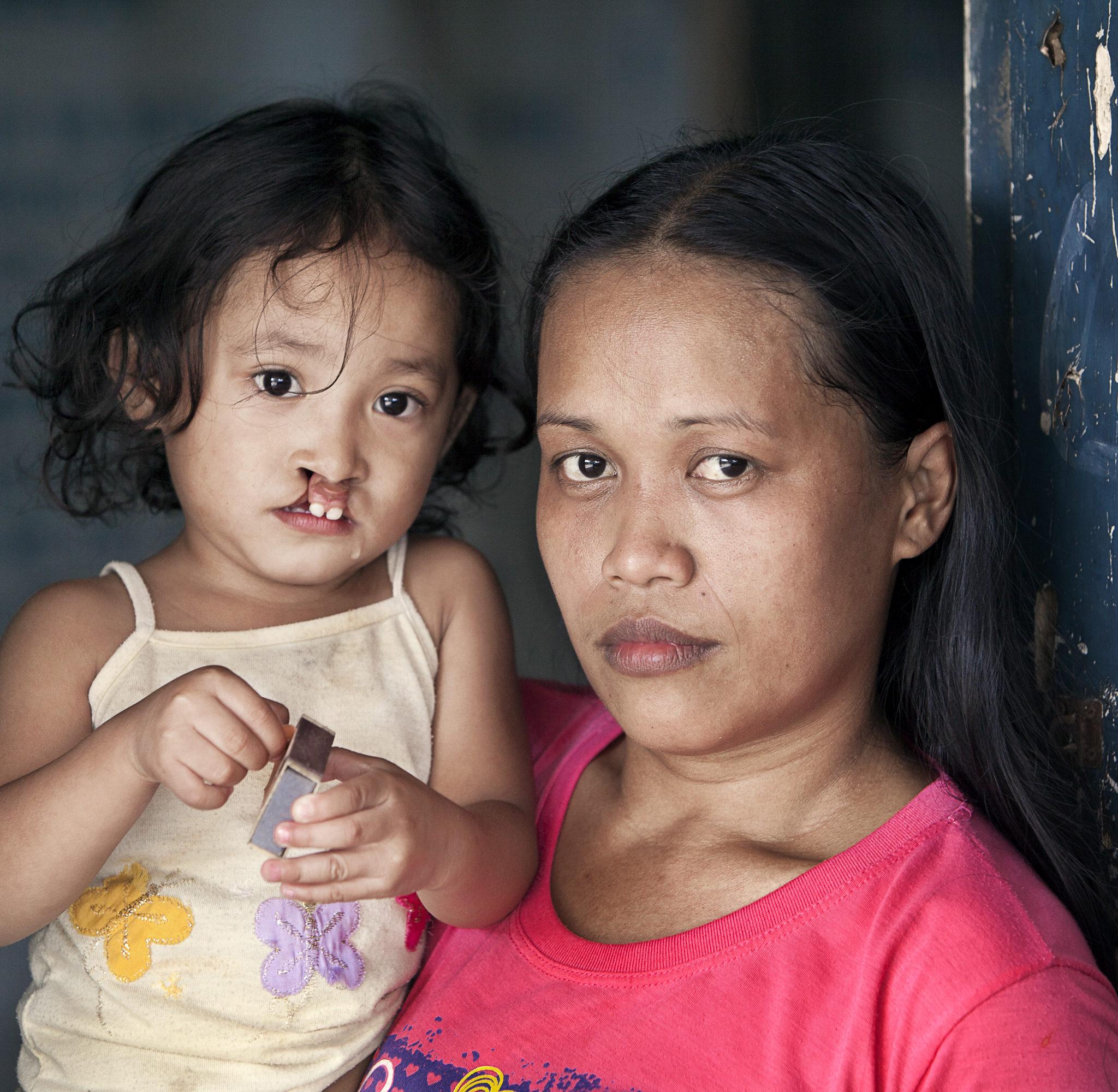 liten flicka med sin mamma innan operation