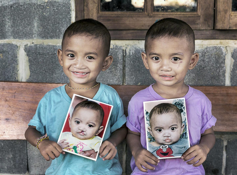 hoppfulla tvillingar efter läppspaltsoperation