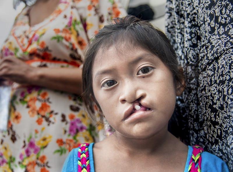 en åttaårig tjej tittar med nöd i blicken in i kameran