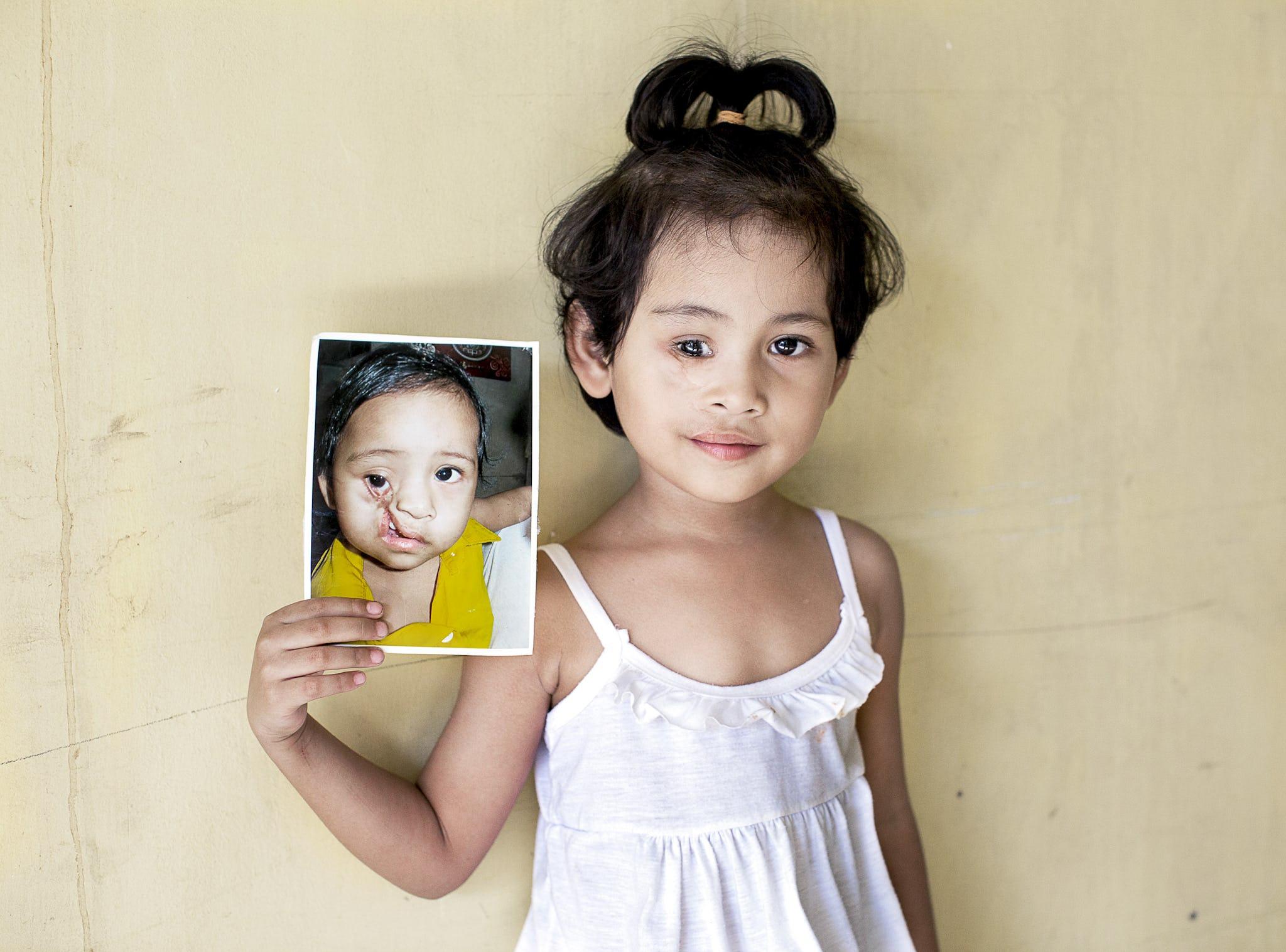 flicka före och efter sin operation för ansiktsmissbildning