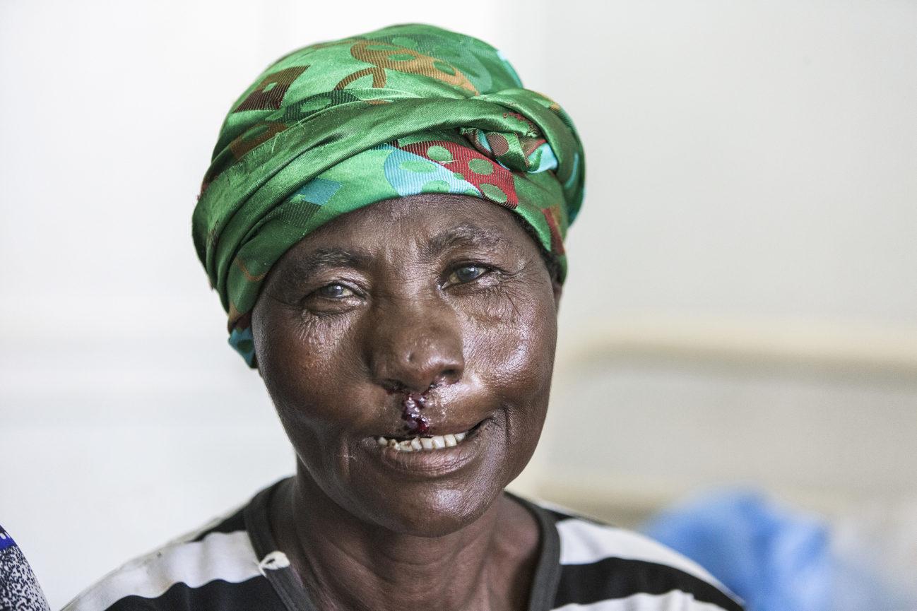 gammal kvinna glad efter operation för läppspalt